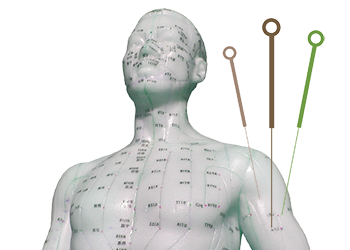 puntos y agujas de acupuntura
