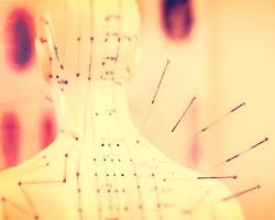 agujas en puntos acupuntura de la espalda